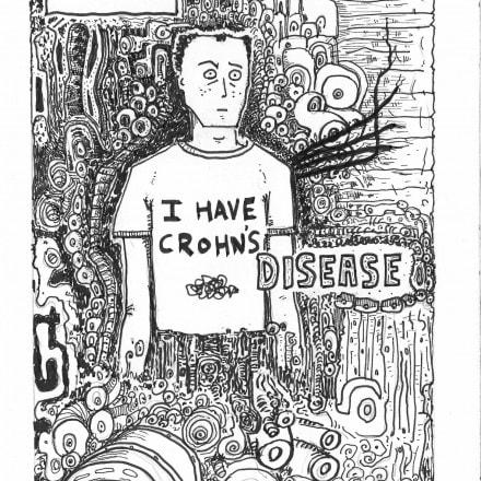 Mike Keeper's 'I Have Crohn's Disease'